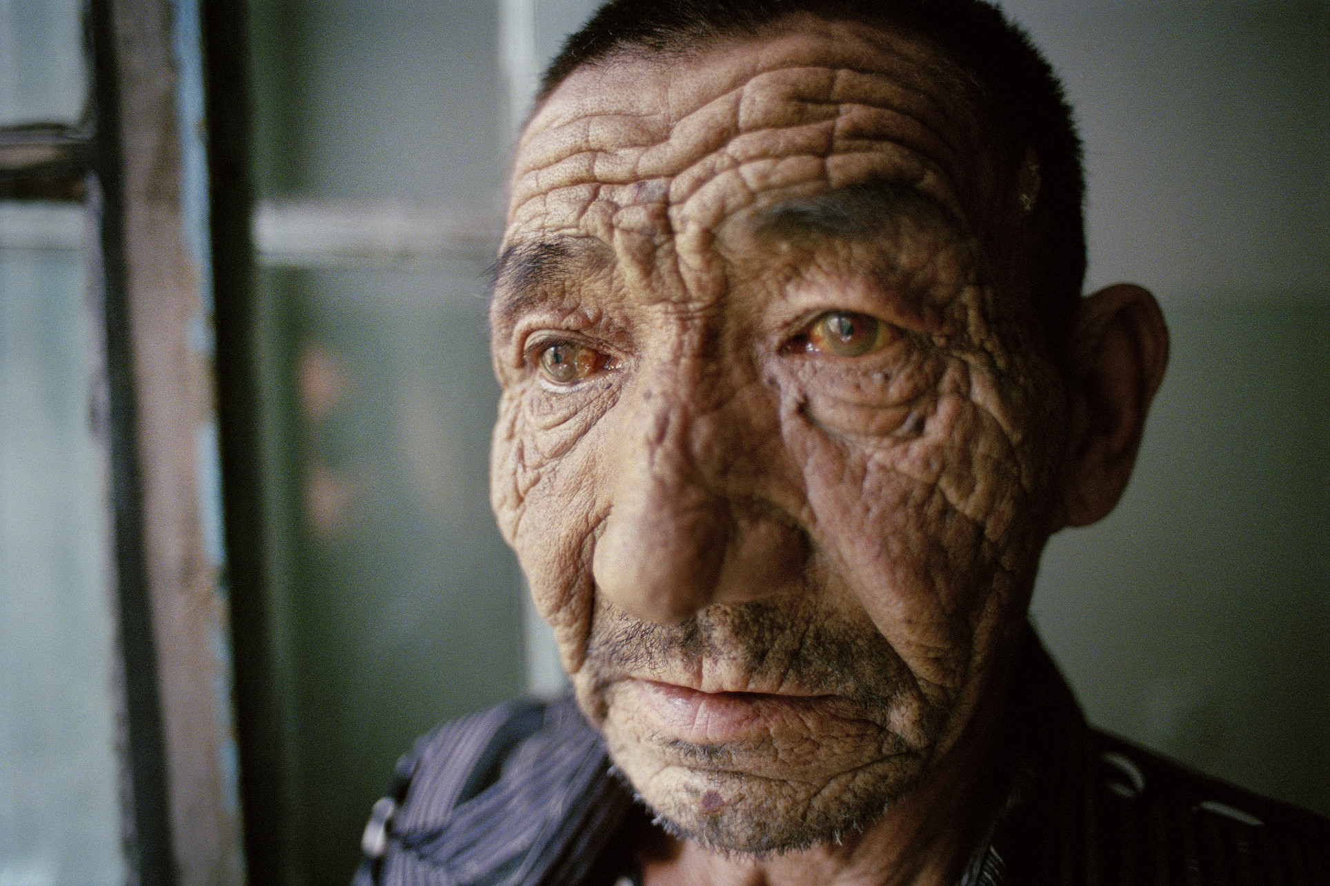 Blinded Nuclear Test Victim